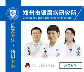 郑州哪家医院治疗牛皮癣好