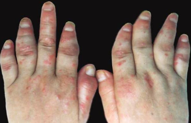 关节型银屑病症状表现是什么