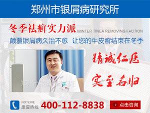 郑州最好牛皮癣医院
