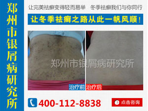 郑州牛皮癣治疗医院