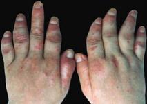 关节型银屑病有哪些症状