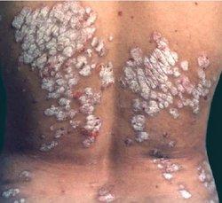 怎么诊断脓疱型银屑病
