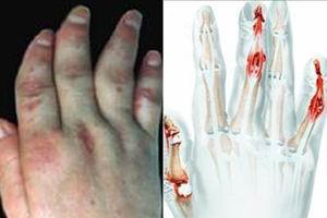 关节型银屑病的症状介绍
