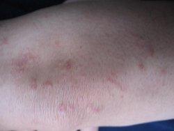 银屑病皮损是怎么形成的