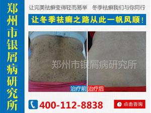 郑州治疗银屑病