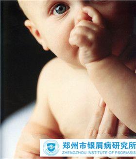 婴儿牛皮癣有哪些症状特点