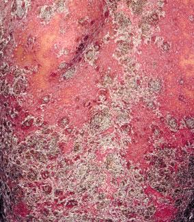 诊断牛皮癣最常见的方法