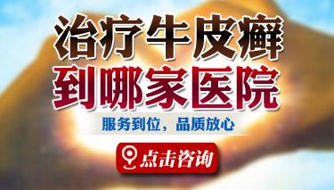 银屑病病因郑州银屑病研究所专业