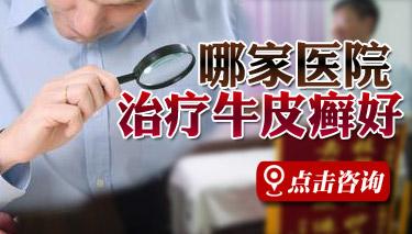郑州银屑病医院银屑病研究所正规