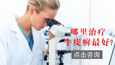 郑州市银屑病研究所是公立还是私立