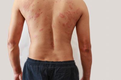 牛皮鲜初期症状 牛皮癣初期治疗